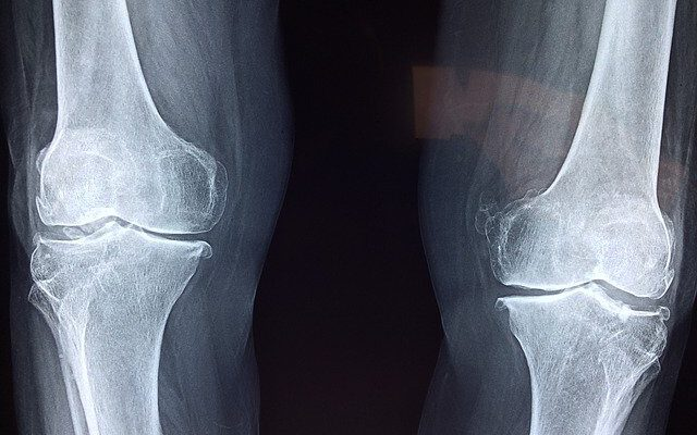Post-Surgical Joint Replacement Precautions and Tips